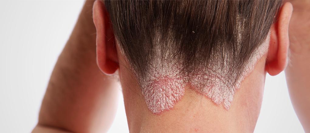 Die nicht hormonale Salbe für die Behandlung atopitscheskogo der Hautentzündung